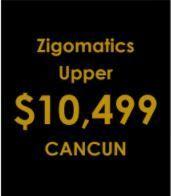 Zigomatics upper implants