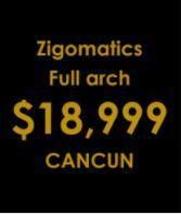 Zigomatics full arch