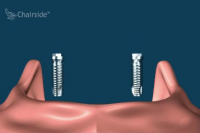 Implant Supported Overdenture, removable (with 2 implants)